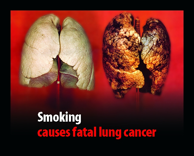 Image result for lung cancer from smoking